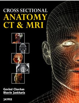 Cross Sectional Anatomy CT and MRI. Bhavin, Chavhan Govind Jankharia ...