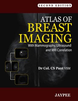 Atlas of Breast Imaging